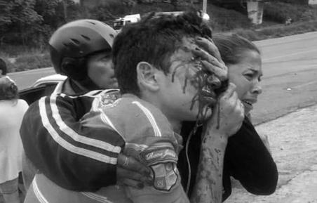 22 personas con disparos en sus ojos esperan justicia en Mérida